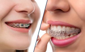klinik gigi spesialis merapikan gigi